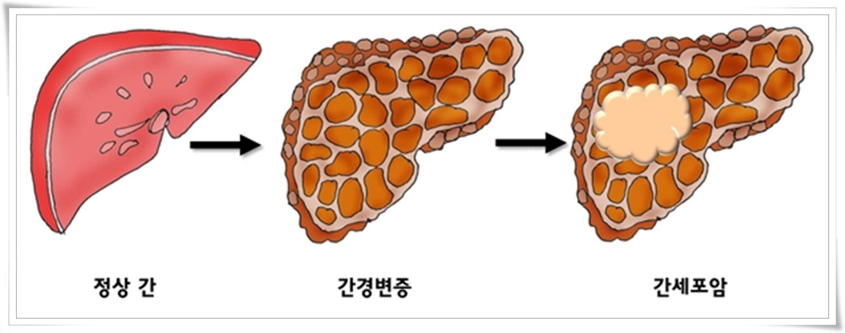 간암약초3-간증상그림.jpg